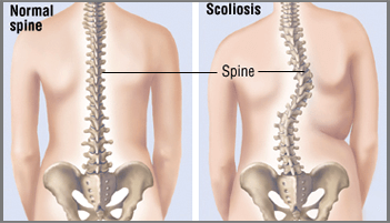 Scoliosis Surgery in Ahmedabad, Scoliosis Surgery in Rajasthan, Scoliosis Surgery in Gujarat, Scoliosis Surgery in Gandhinagar